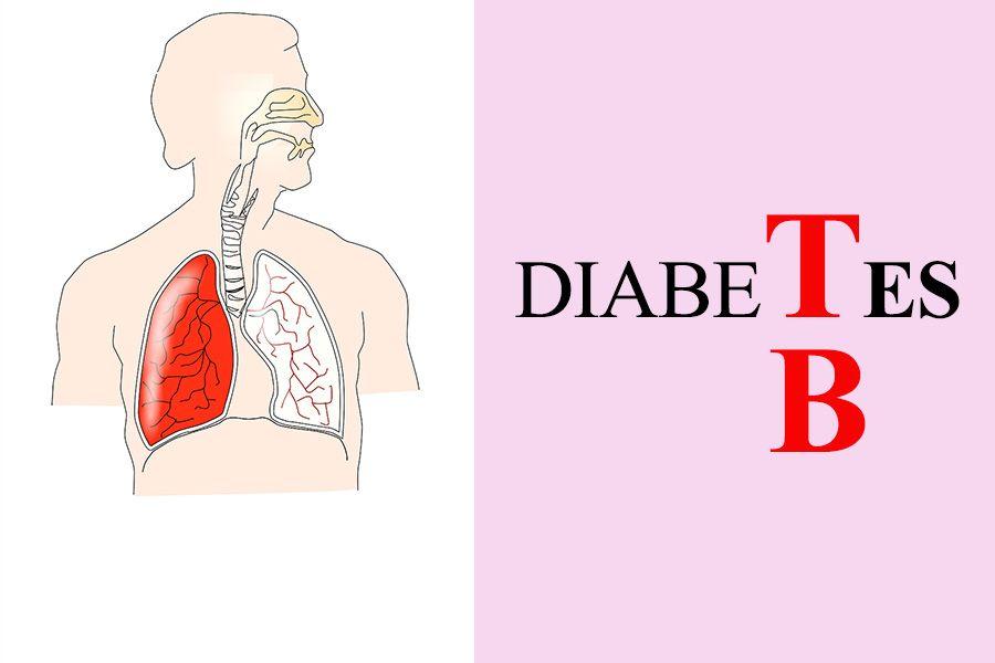 Type 2 Diabetes Mellitus Risk Factor for Tuberculosis